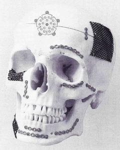 鈦金屬顱顏骨釘骨板系統