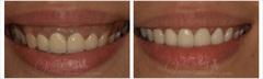水雷射牙齦整形 牙冠增長術+牙齦淨白術+頂級全瓷冠